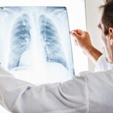 Gydytoja apie plaučių ligas: kodėl bijome skiepų, bet nebijome rūkyti?