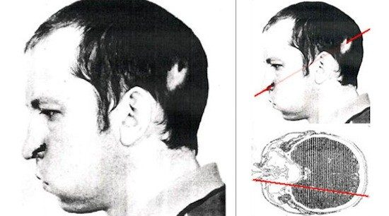Į netikėtai suveikusį dalelių greitintuvą galvą įkišęs rusų mokslininkas liko gyvas