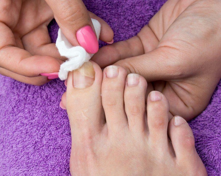 Specialistė įspėja: negydomas pėdų grybelis gali sukelti rimtą infekciją