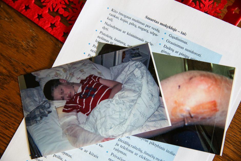 Po sužaloto moksleivio tėvus įžeidusio valdininko komentaro - tyrimas
