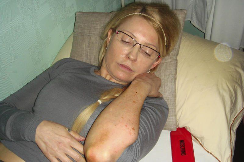 Ukrainos sveikatos ministerija: J.Tymošenko sveiksta