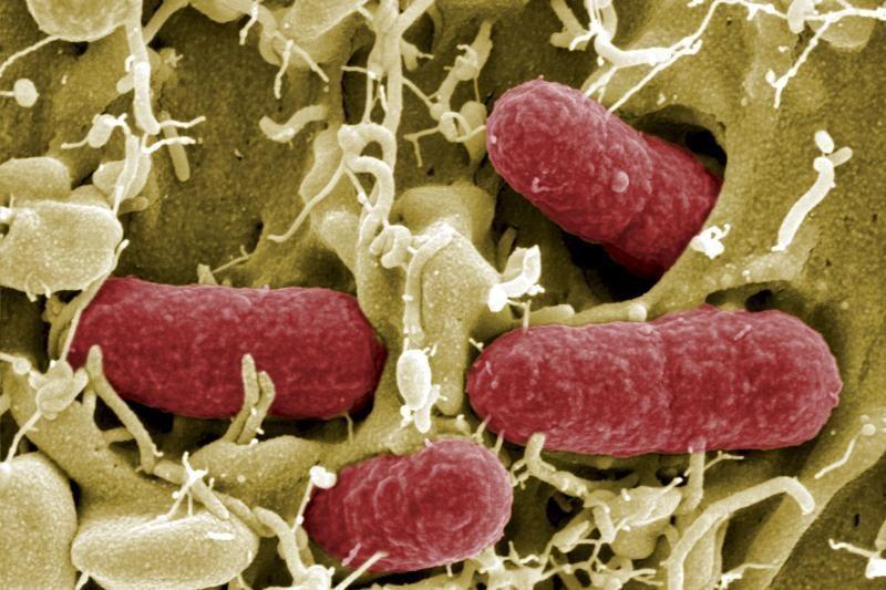 Izoliuotame N.Meksikos urve aptikta antibiotikams atsparių bakterijų