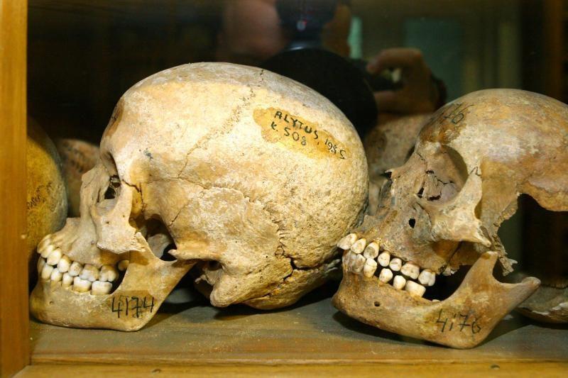 Klaipėdoje ant suoliuko rasta žmogaus kaukolė