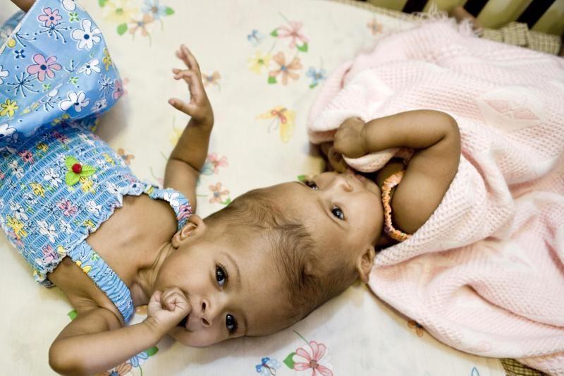 Medikai: britų chirurgų atskirtos Siamo dvynės jaučiasi gerai