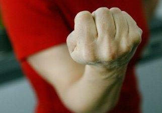 Vyras šilutiškei sulaužė ranką ir koją