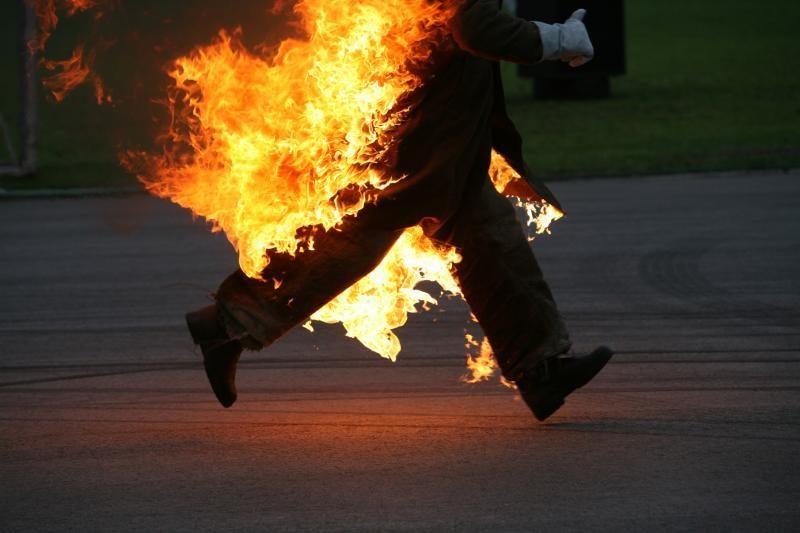 Klaipėdos rajone smarkiai apdegė mažametis