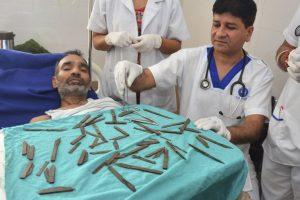 Indijoje 40 peilių prarijęs vyras kaltina jį suviliojusias dvasias