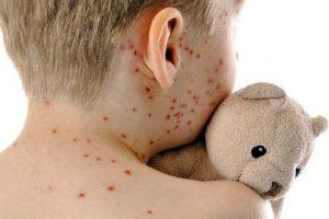 Neraminantys skaičiai: Lietuvoje jau užregistruota aštuoniolika susirgimų tymais