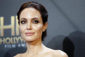 A. Jolie pavyzdžiu seka vis daugiau Lietuvos moterų