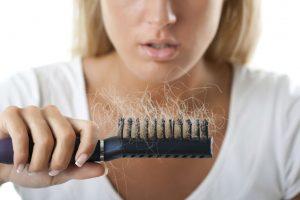 Plaukų slinkimas: nuo ko pradėti gydymą?
