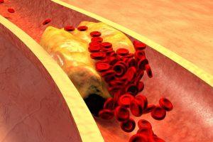 Daugiausiai lietuvių gyvybių nusinešė kraujotakos sistemos ligos