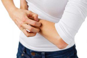 Lėtinės odos ligos pranešėjas – niežulys