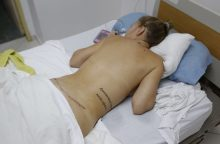 Sučiuptas dėl pacientės mirties kaltinamas garsenybių plastikos chirurgas