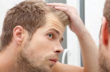 Tikros istorijos: gausiai slenka plaukai, ar aš nupliksiu?