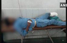 Indijos ligoninėje vietoj pagalvės panaudota nuplėšta paciento koja